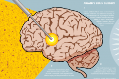 Stefan-Lindblad-Brain_Ablative_Surgery_2015